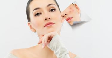 akne domashna maska za lechenie