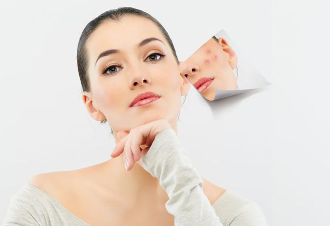 domashni maski protiv akne