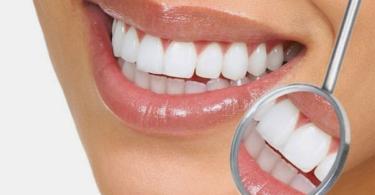 почистване-на-зъбен-камък