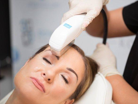 ultrazvukov hifu neoperativen smas lifting na lice dr kalqsheva derma sofiq