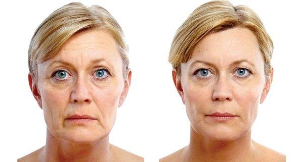 ultrazvukov hifu smas lifting na lice dr kalqsheva derma sofiq