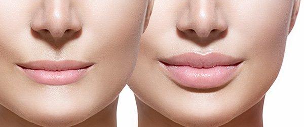 petrana kalqsheva derma sofia hialuronova kiselina v ustnite