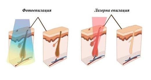 diodna lazerna epilaciq v Sofiq doktor Petrana Kalqsheva