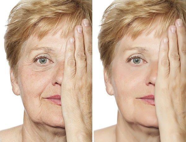 lazerna procedura za lice Fractora dr kalqsheva derma sofia