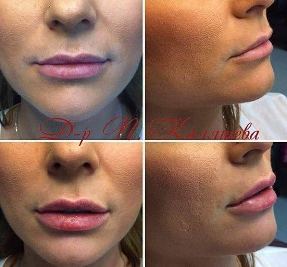 ugolemqvane na ustni s hialuronova kiselina