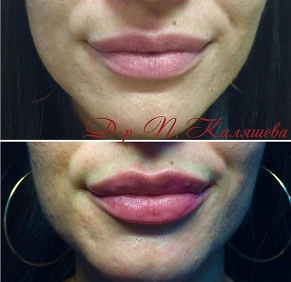 Боли ли поставянето на хиалурон в устните