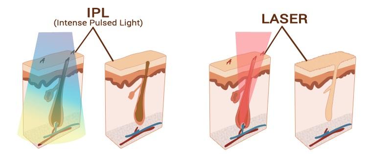 fotoepilaciq ili lazerna epilaciq
